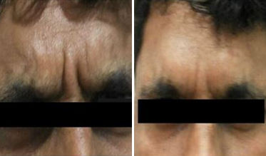 Botox Treatment Before After