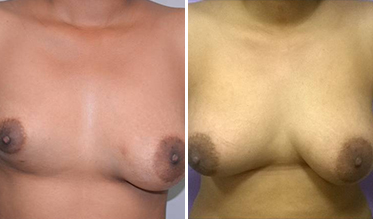Breast Augmentation By Fat Grafting Before After