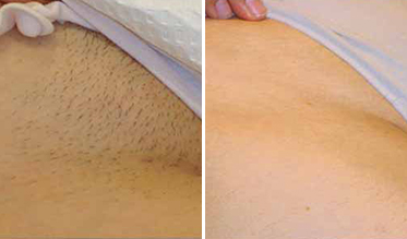 Pain-Free Hair Removal Before After