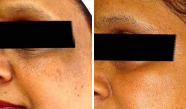 Pigmentation Before After